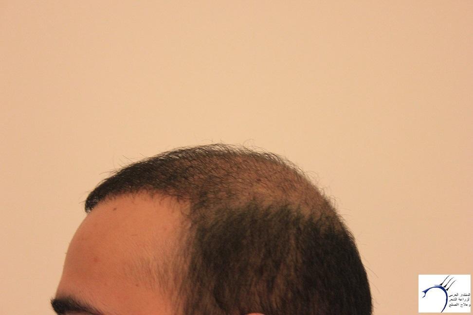 www.hairarab.com00dd