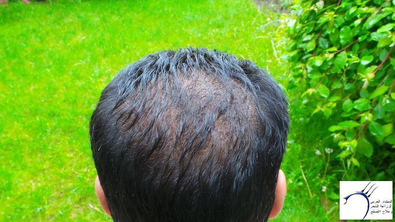 تجربتي لزراعة الشعر تركيا الدكتور www.hairarab.com018d