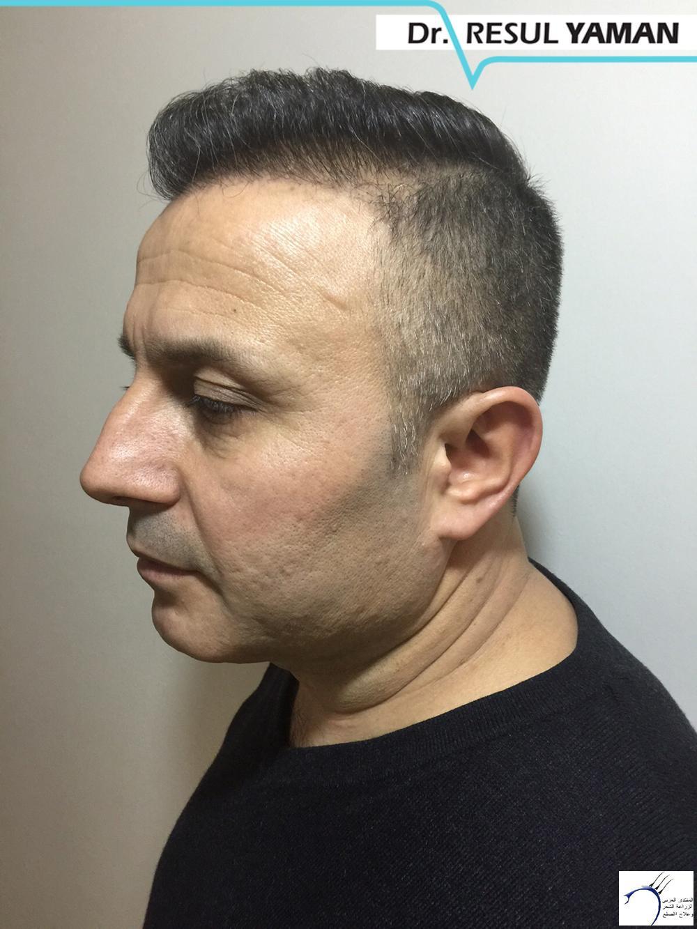 نتيجة السيد Emin Demir زراعة www.hairarab.com0192