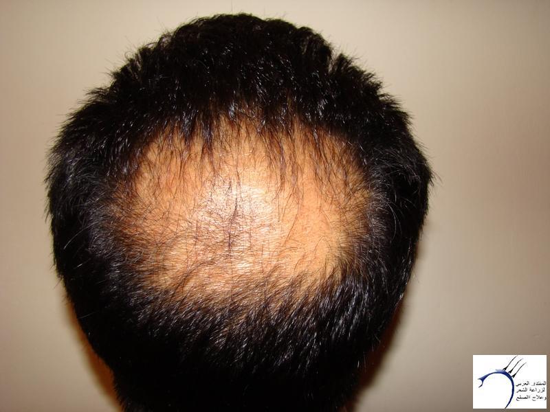 تجربتي لزراعة الشعر تركيا الدكتور www.hairarab.com0285