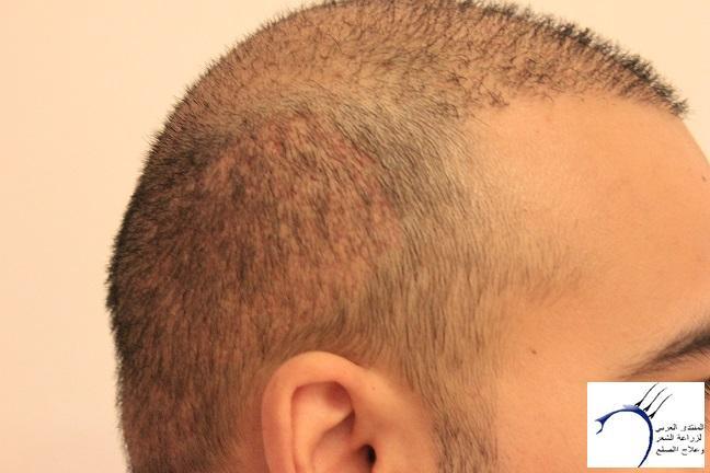 www.hairarab.com034f