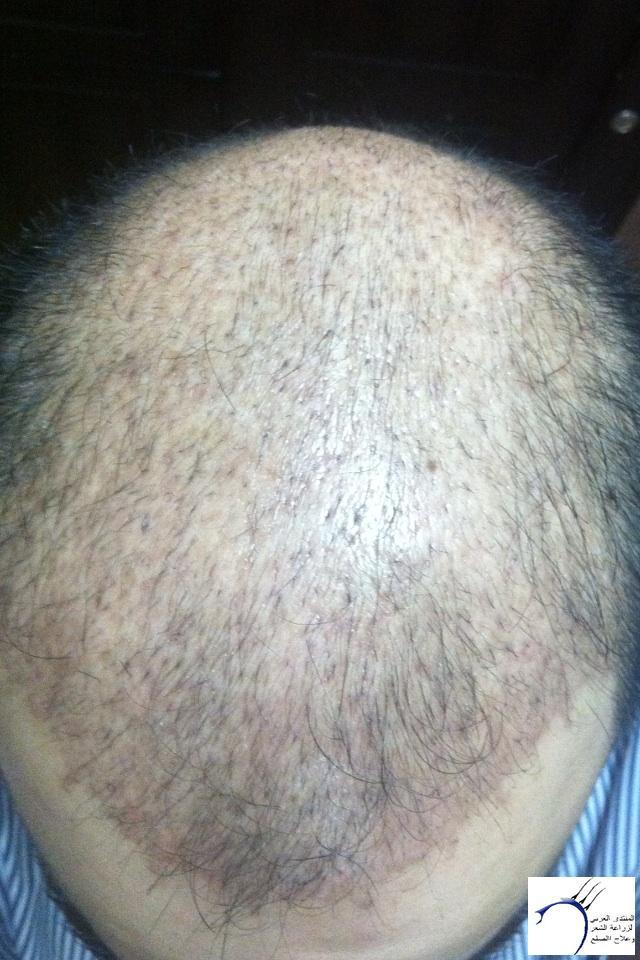 (التحديث الأول شهرين تفاصيل زراعتي www.hairarab.com0383