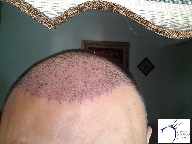 (تحديث الشهر تجربة زراعة الشعر www.hairarab.com03f6