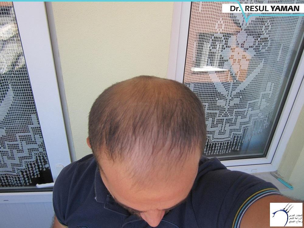 4680 الدكتور www.hairarab.com0446