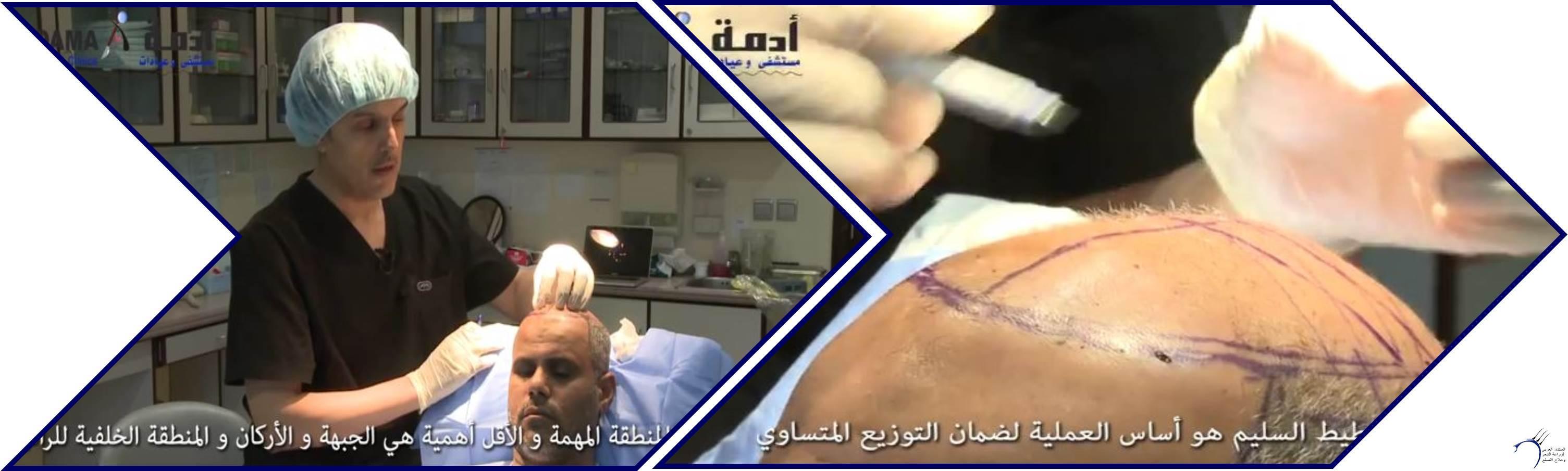 مشاكل الصلع وزراعة الشعر للدكتور www.hairarab.com0697