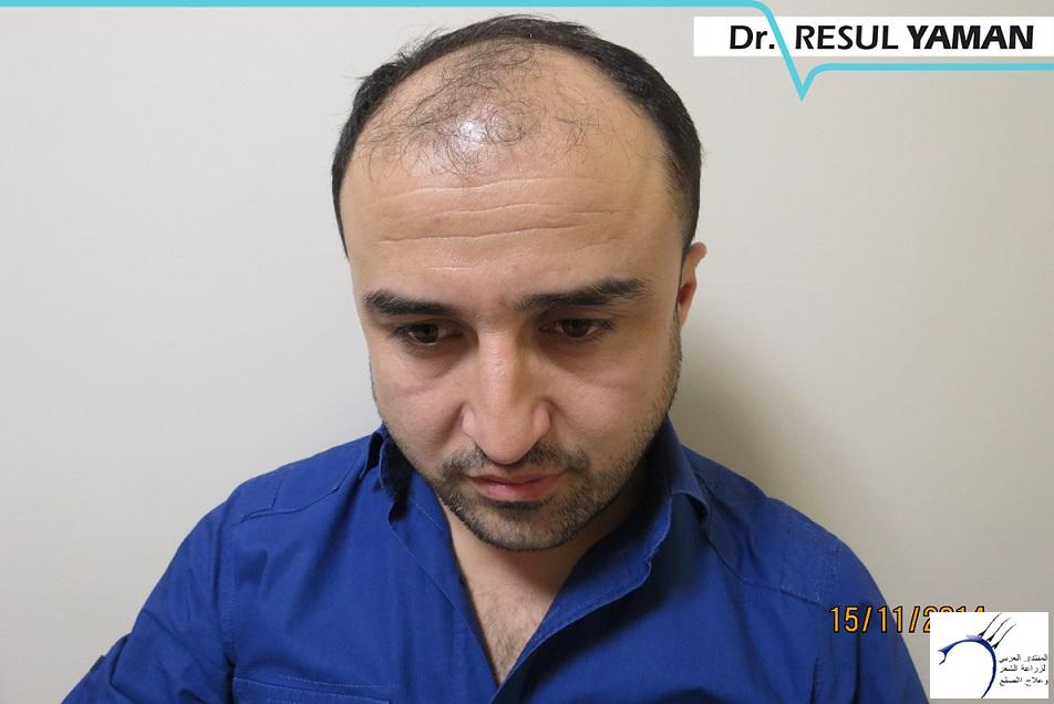 4800 بصيلة واحد-الدكتور رسول يمان www.hairarab.com06c6