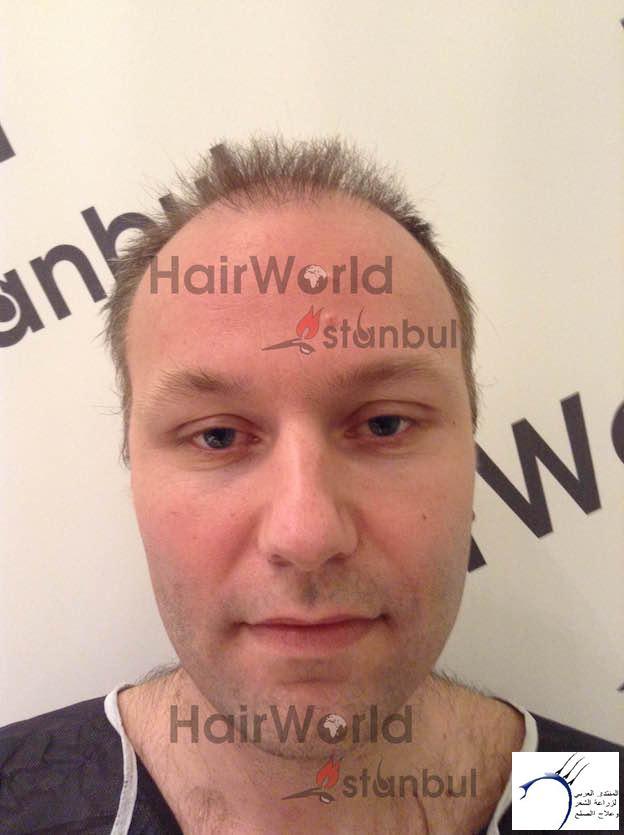 التجارب تركيا(مركز الهولندي) www.hairarab.com0941