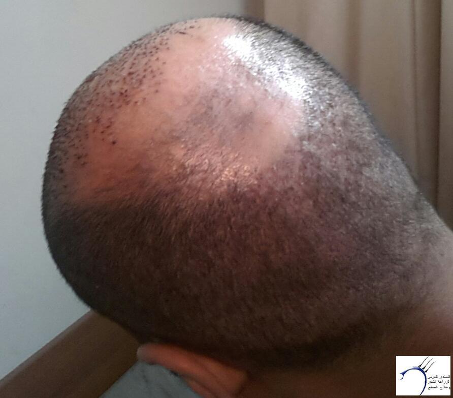 تجربتي مستشفى اتوجنميد التحديث واضافة www.hairarab.com0df6