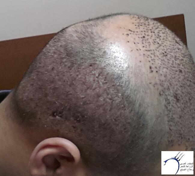 تجربتي مستشفى اتوجنميد التحديث واضافة www.hairarab.com0e15