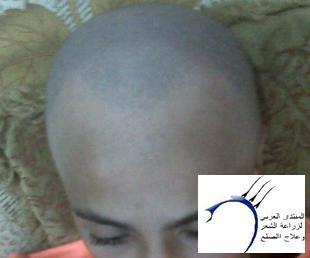 تساعدني www.hairarab.com0e35