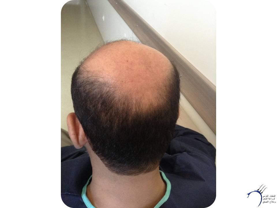 بعون الله وتوفيقه الزراعة بمركز www.hairarab.com0e9a
