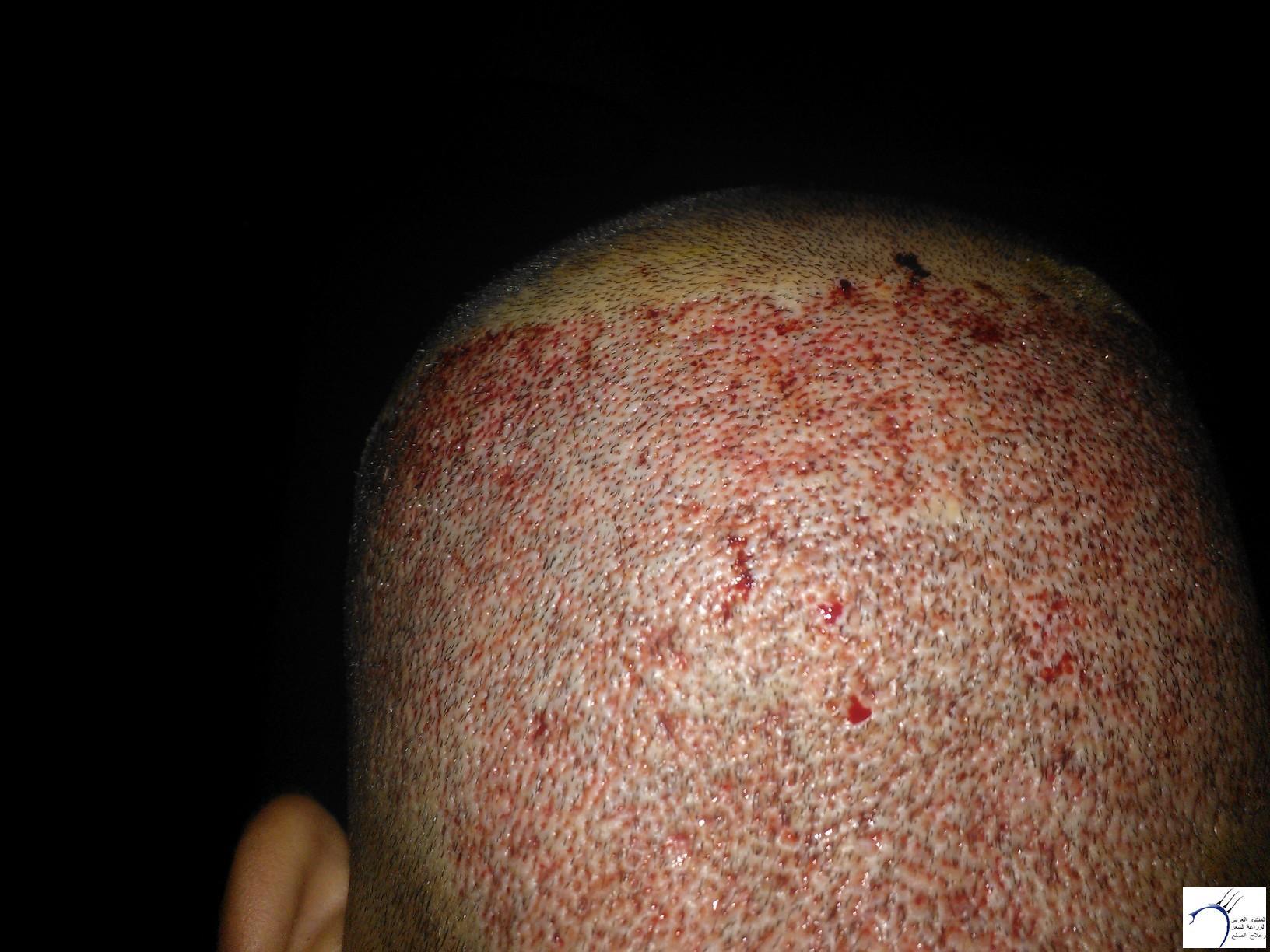 بحمد الله العملية عيادة جينيمد www.hairarab.com0f04