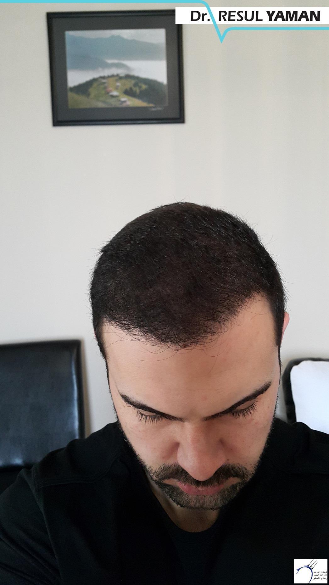 نتيجة زراعة 4600 بصيلة شهرا www.hairarab.com1094