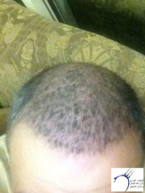 تجريتي والدكتور سركان (للعضو محمد) www.hairarab.com1236