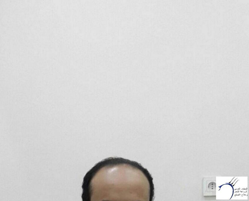 الدكتور www.hairarab.com1254
