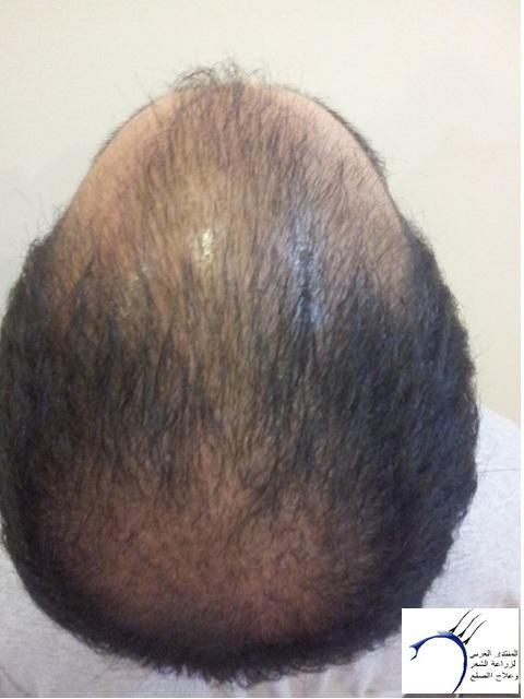 www.hairarab.com127d