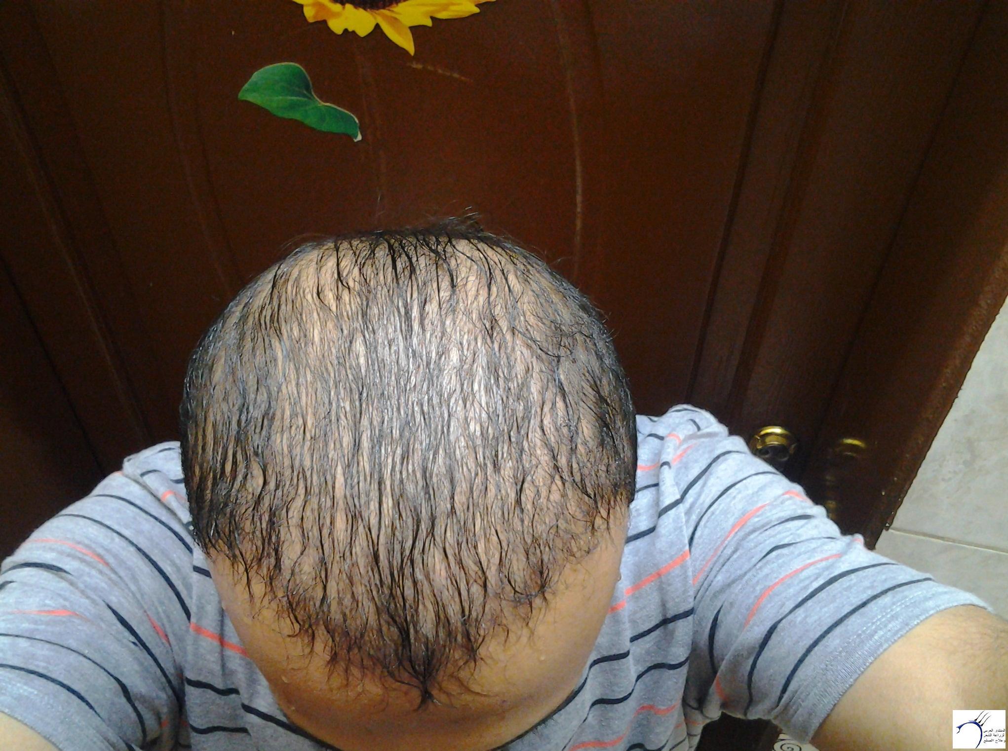 الدكتور (تحديث السابع) www.hairarab.com12b3