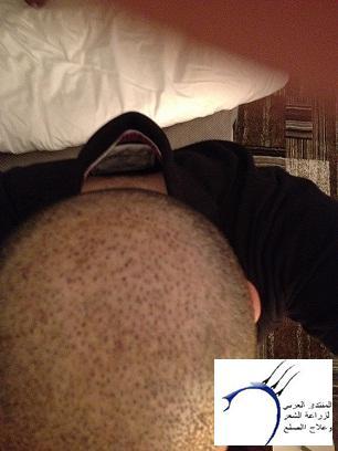 العملية عيادة cevre تحديث شهور www.hairarab.com1559