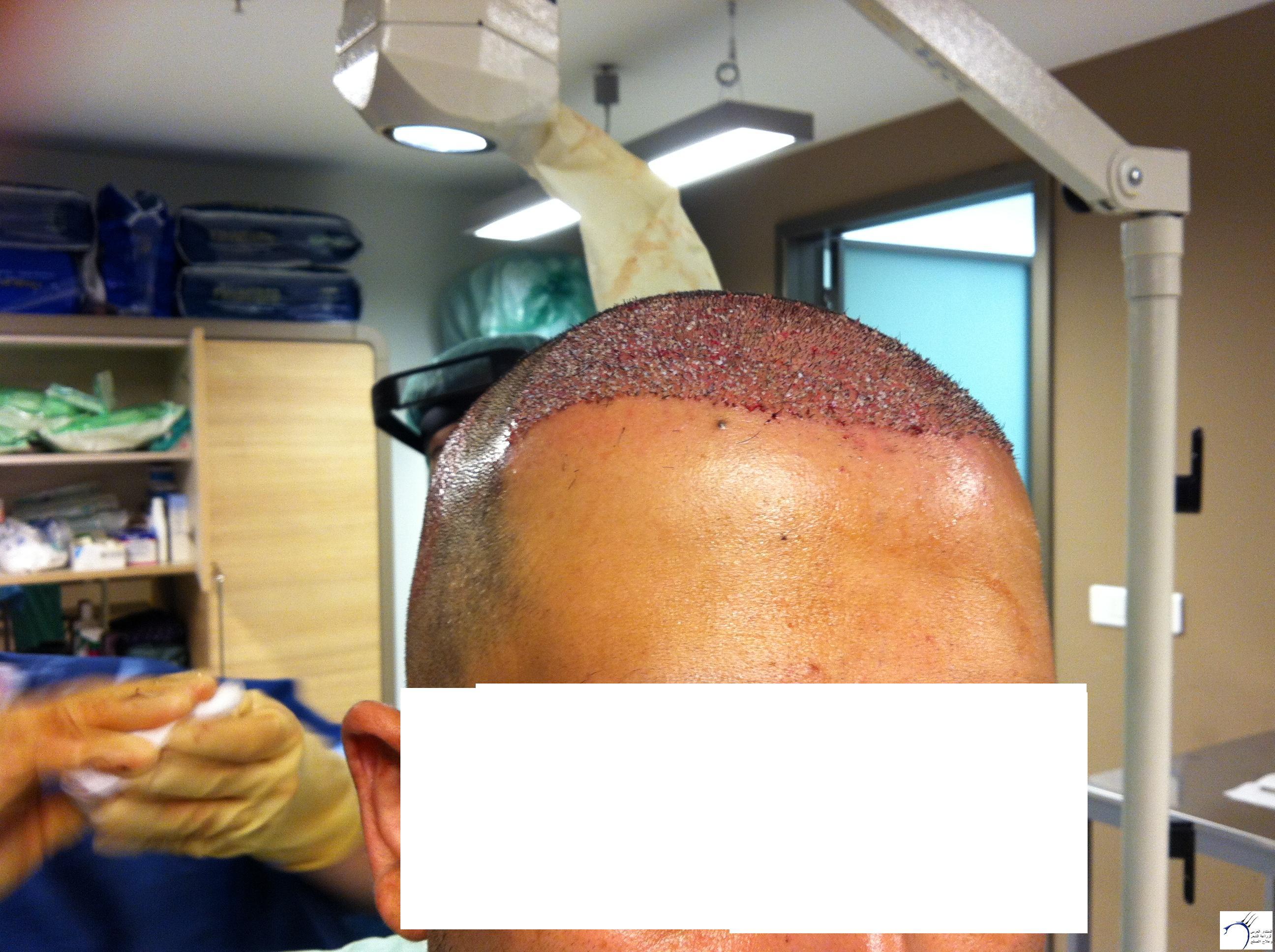 تجربتي لزراعة الشعر الدكتور Tayfun www.hairarab.com1651