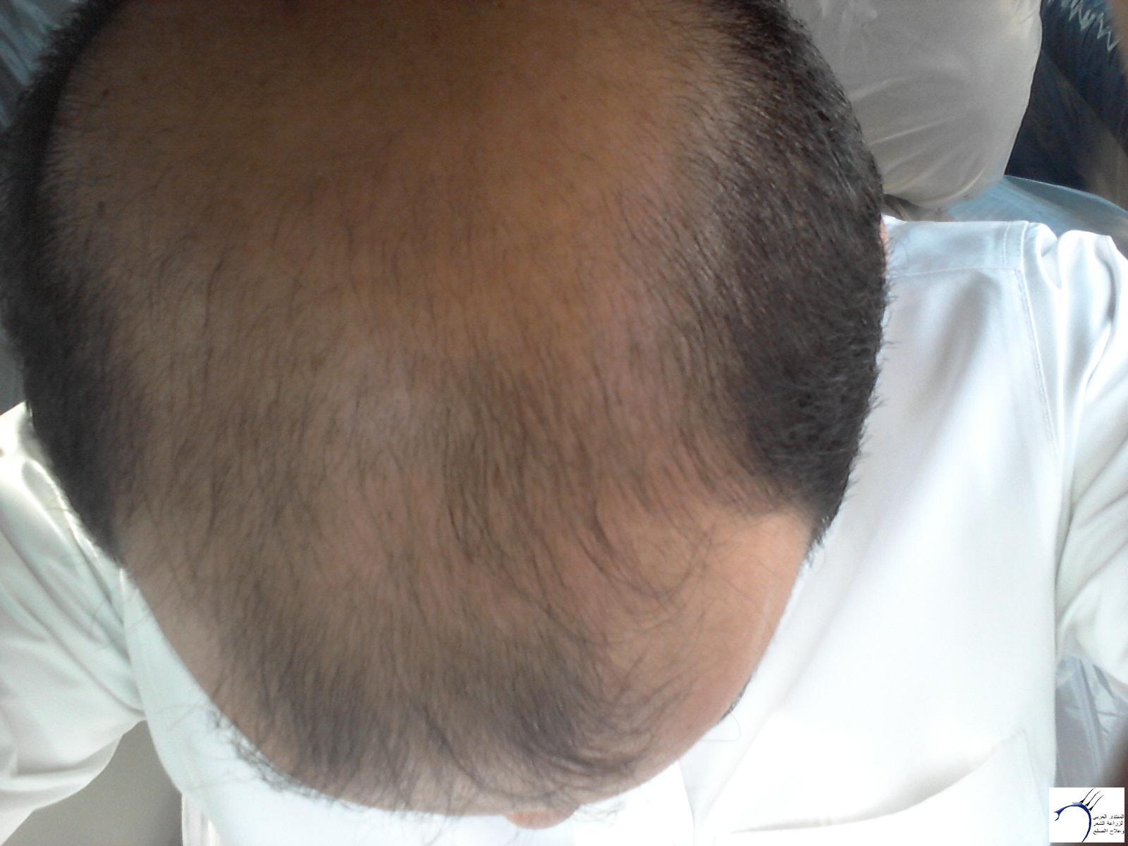 (تحديث بعدسنة)تجربتي بالصور الاخصائي محمد www.hairarab.com170f
