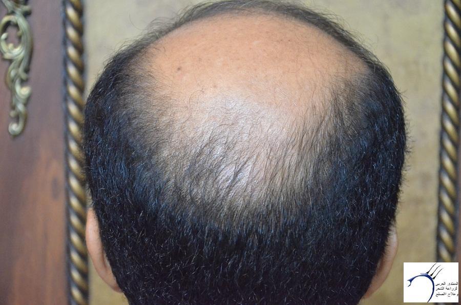 اليكم نتيجة زراعتي الاولى نتيجة www.hairarab.com17b1