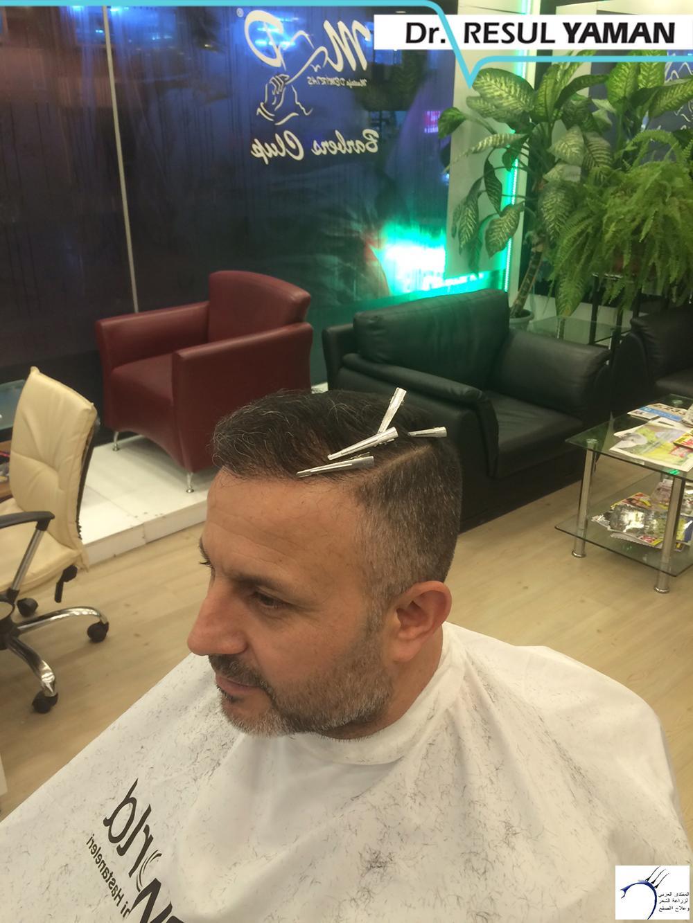نتيجة السيد Emin Demir زراعة www.hairarab.com18ac