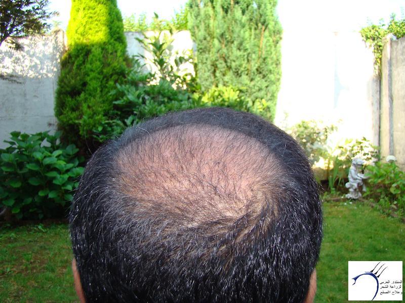 تجربتي لزراعة الشعر تركيا الدكتور www.hairarab.com19be