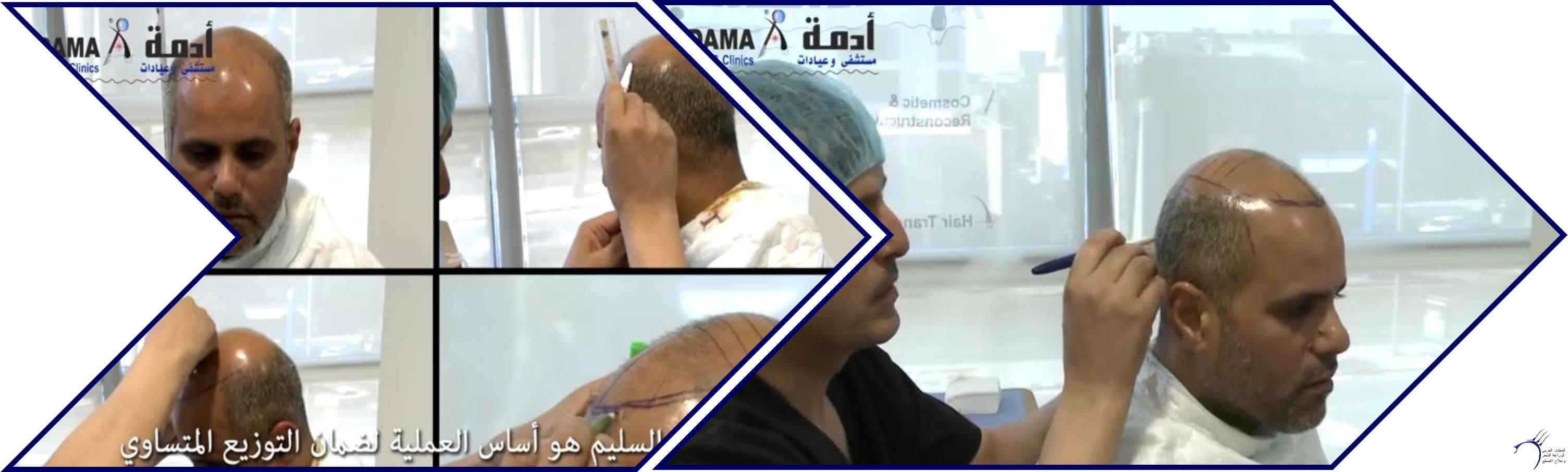 مشاكل الصلع وزراعة الشعر للدكتور www.hairarab.com19f8