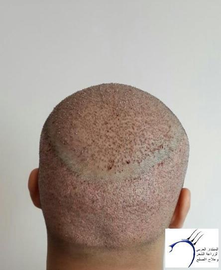 www.hairarab.com1c20