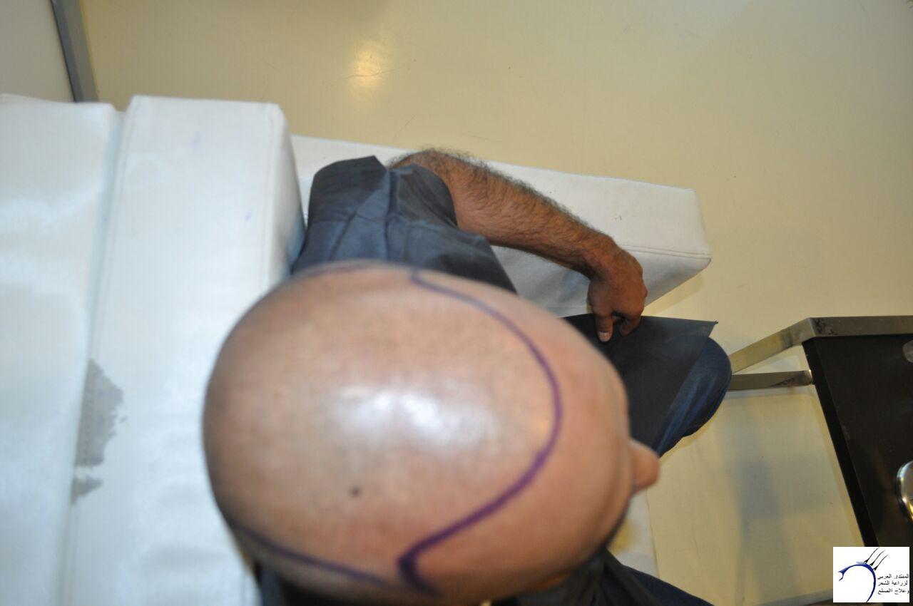 تجربتي مستشفى ايست اثيكا تركيا www.hairarab.com1c6a