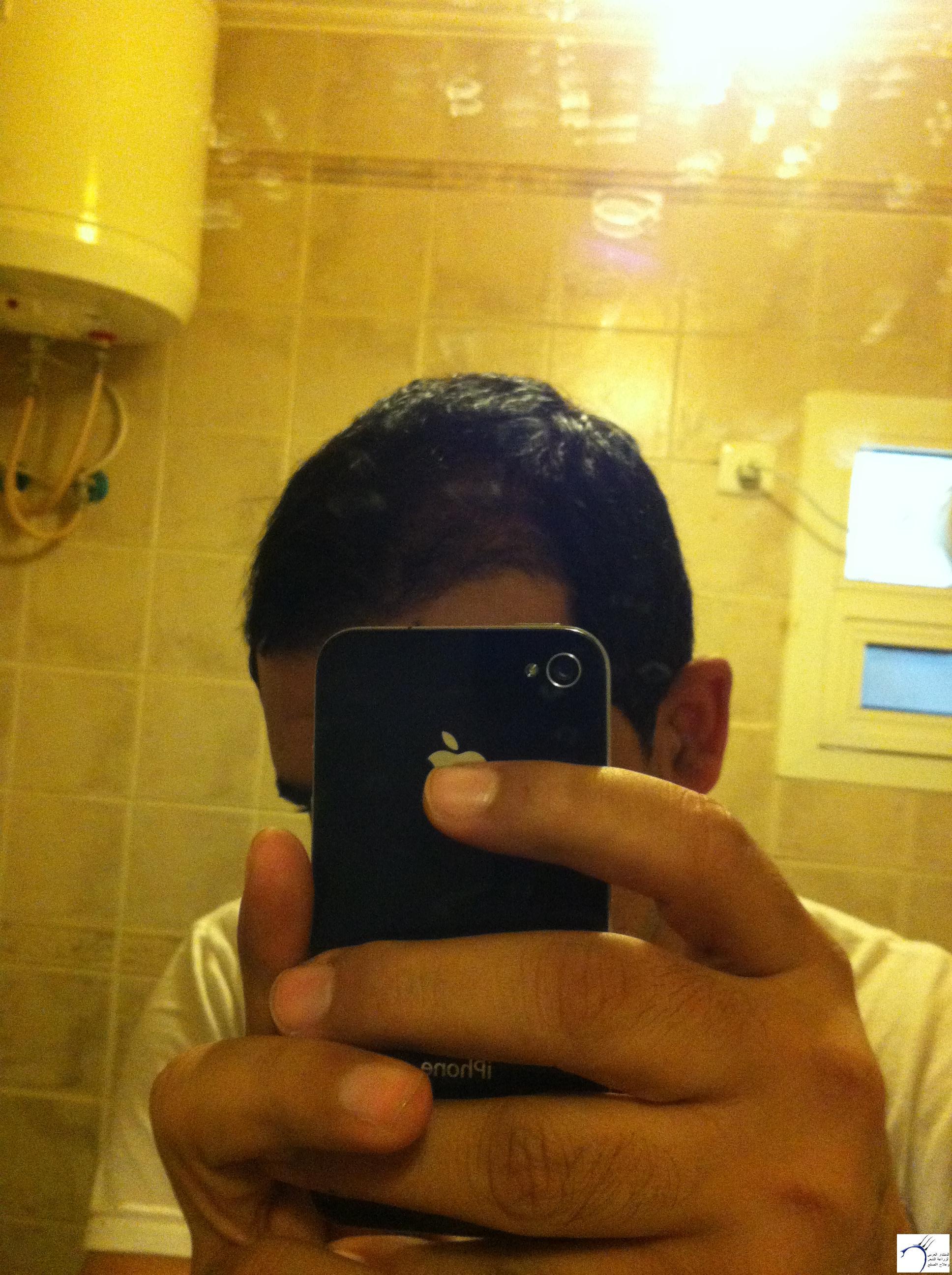 تجربتي لزراعة الشعر الدكتور Tayfun www.hairarab.com1da3