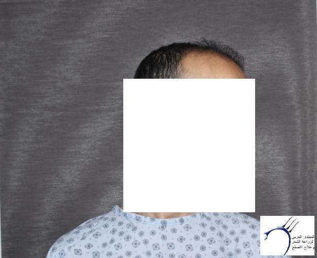 بحمد الله العملية عيادة جينيمد www.hairarab.com1eec
