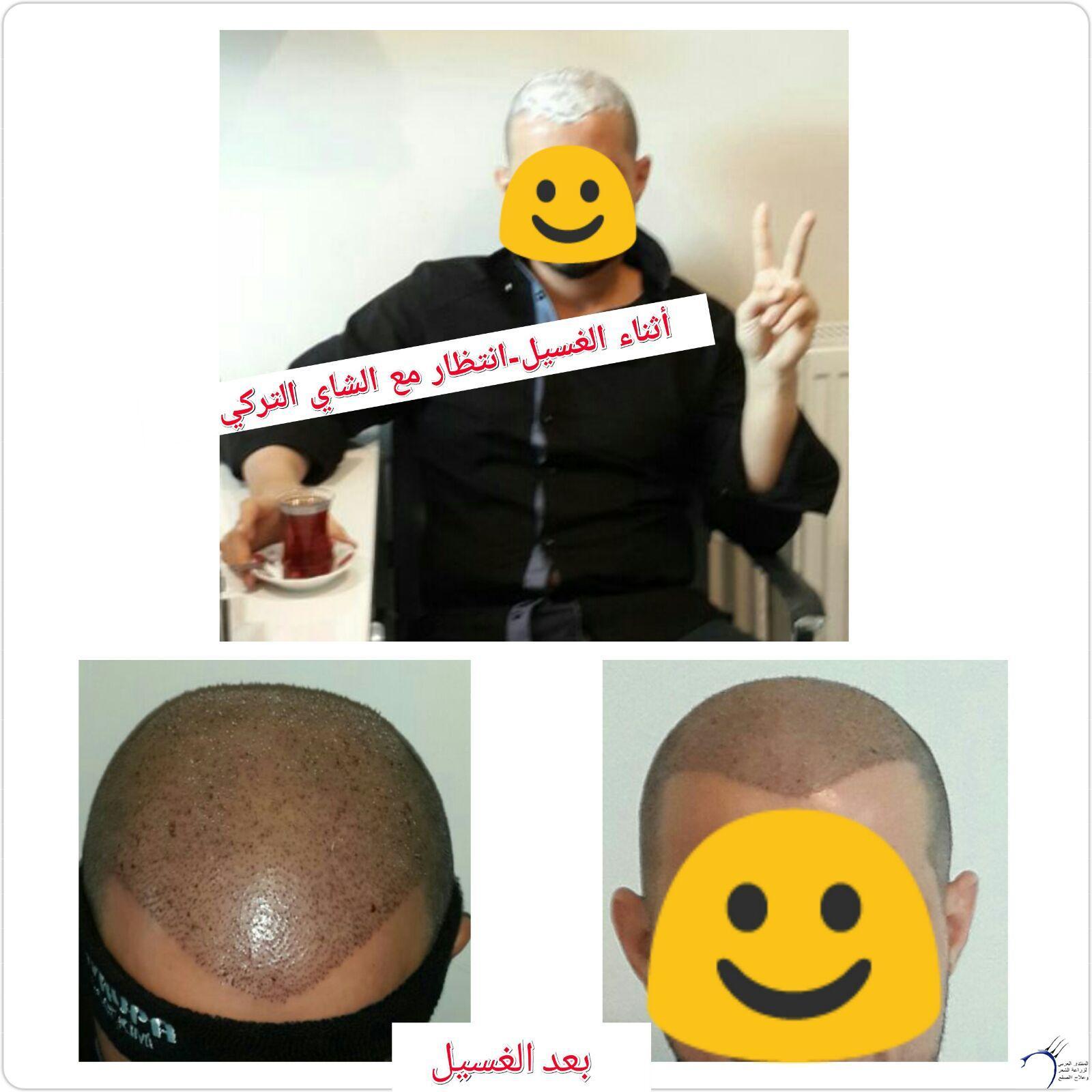 (تحديث بعدسنة)تجربتي بالصور الاخصائي محمد www.hairarab.com1f71