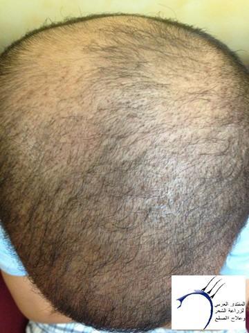 أقدم تجربـتي لزراعة الشعر مركـز www.hairarab.com205f