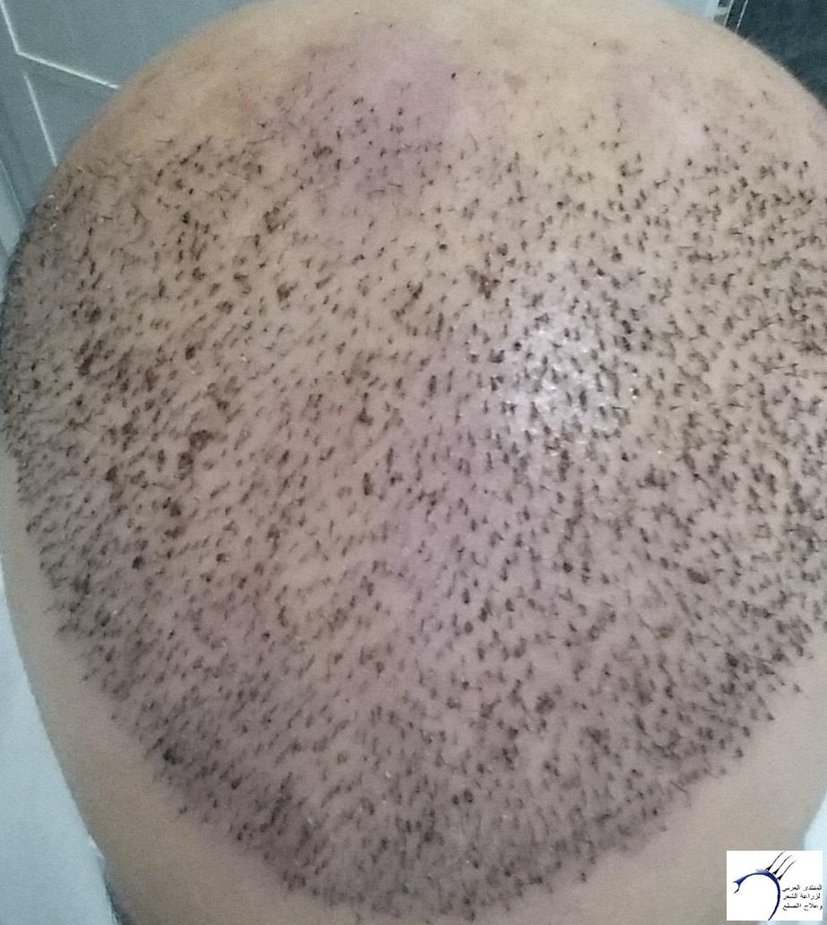 زراعتي الأخصائي محمد جوتشلو بتاريخ www.hairarab.com21e7