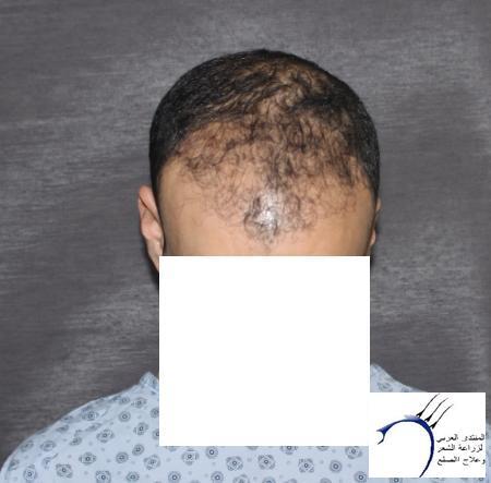 بحمد الله العملية عيادة جينيمد www.hairarab.com2206
