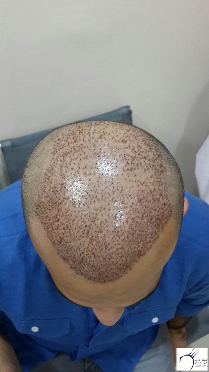 www.hairarab.com22af