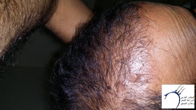 www.hairarab.com22bf