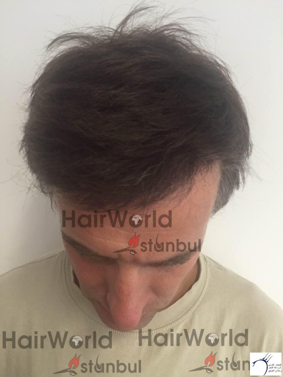 التجارب تركيا(مركز الهولندي) www.hairarab.com2365