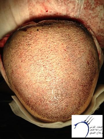 أقدم تجربـتي لزراعة الشعر مركـز www.hairarab.com2424
