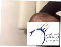 اسالكم بالله لاتبخلو علية بالرد www.hairarab.com2501