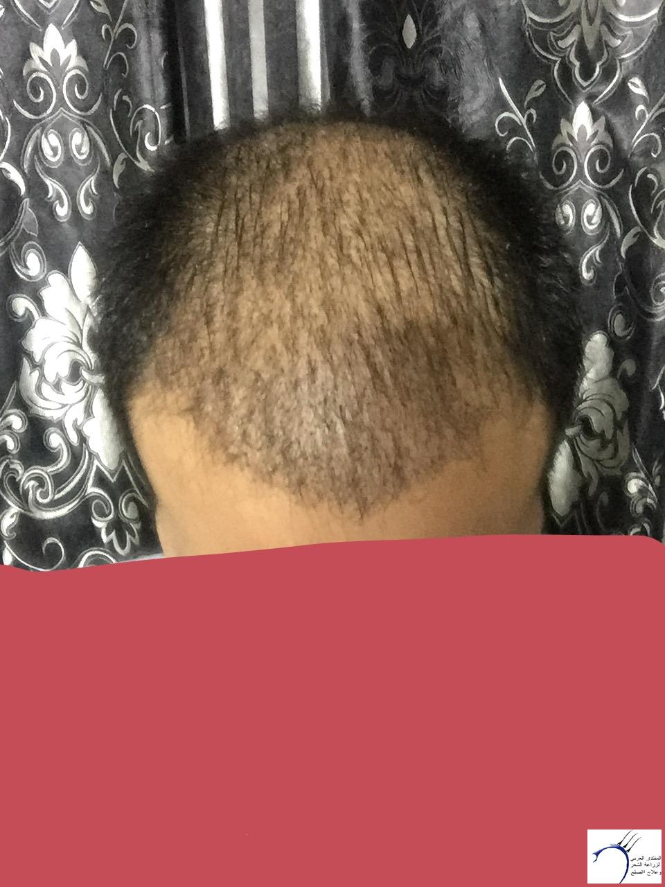 تجربتي رويال تحديث الشهر الرابع www.hairarab.com2562
