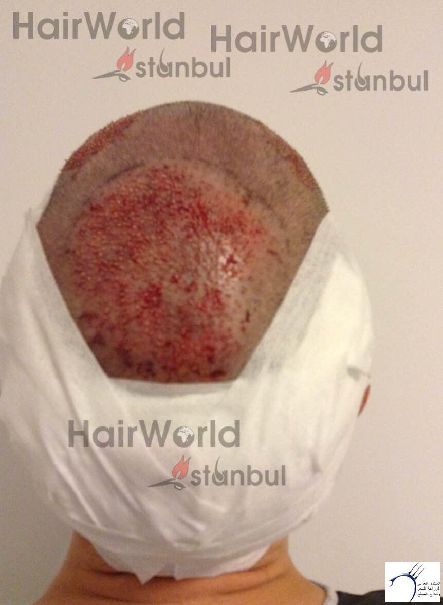 نتيجة زراعة 3700 بويصلة لشخص www.hairarab.com263f