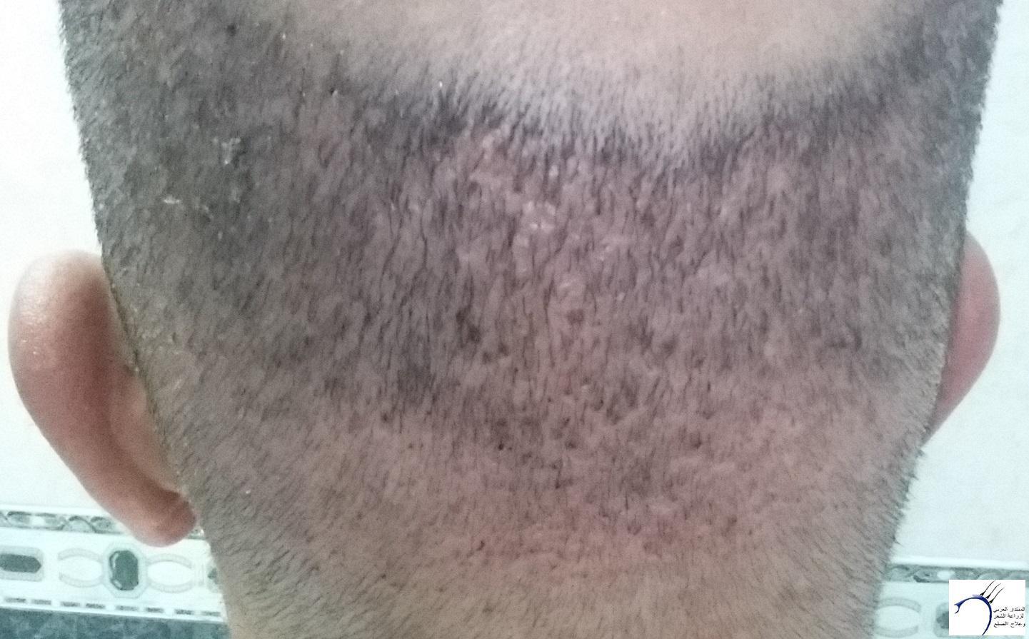 زراعتي الأخصائي محمد جوتشلو بتاريخ www.hairarab.com28e2