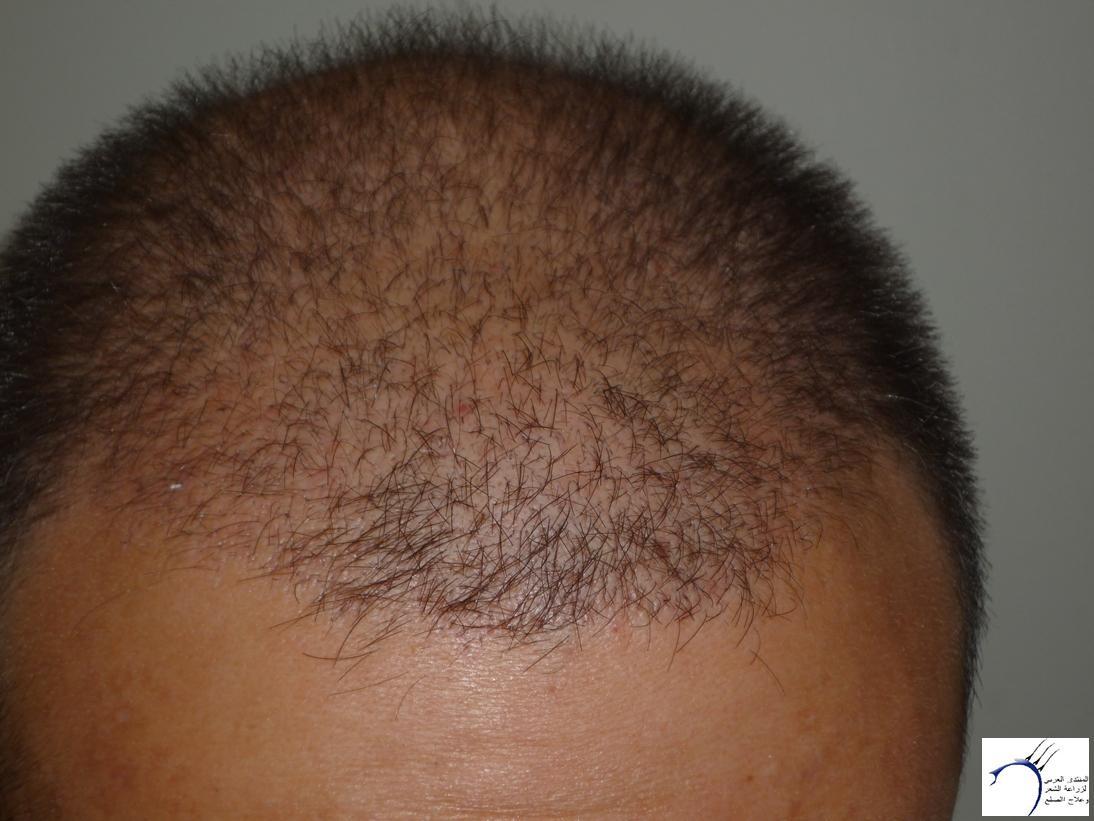 تجربتي CEVRE Hospital (2012-7-15 www.hairarab.com29ba