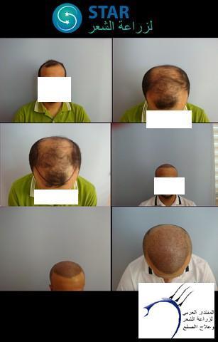 أقدم تجربـتي لزراعة الشعر مركـز www.hairarab.com29cf