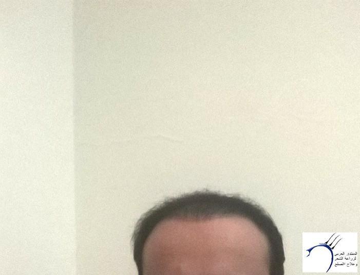 الدكتور www.hairarab.com29ef
