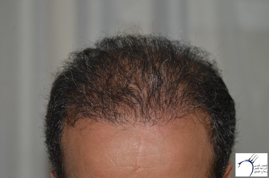 اليكم نتيجة زراعتي الاولى نتيجة www.hairarab.com2b80