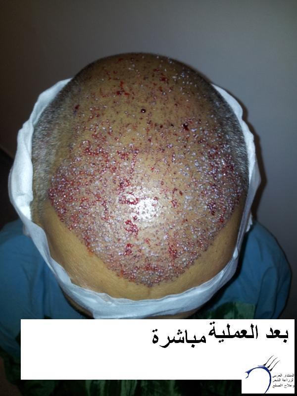 زراعتي الدكتور محمد جوتشلو- وكما www.hairarab.com2dd7