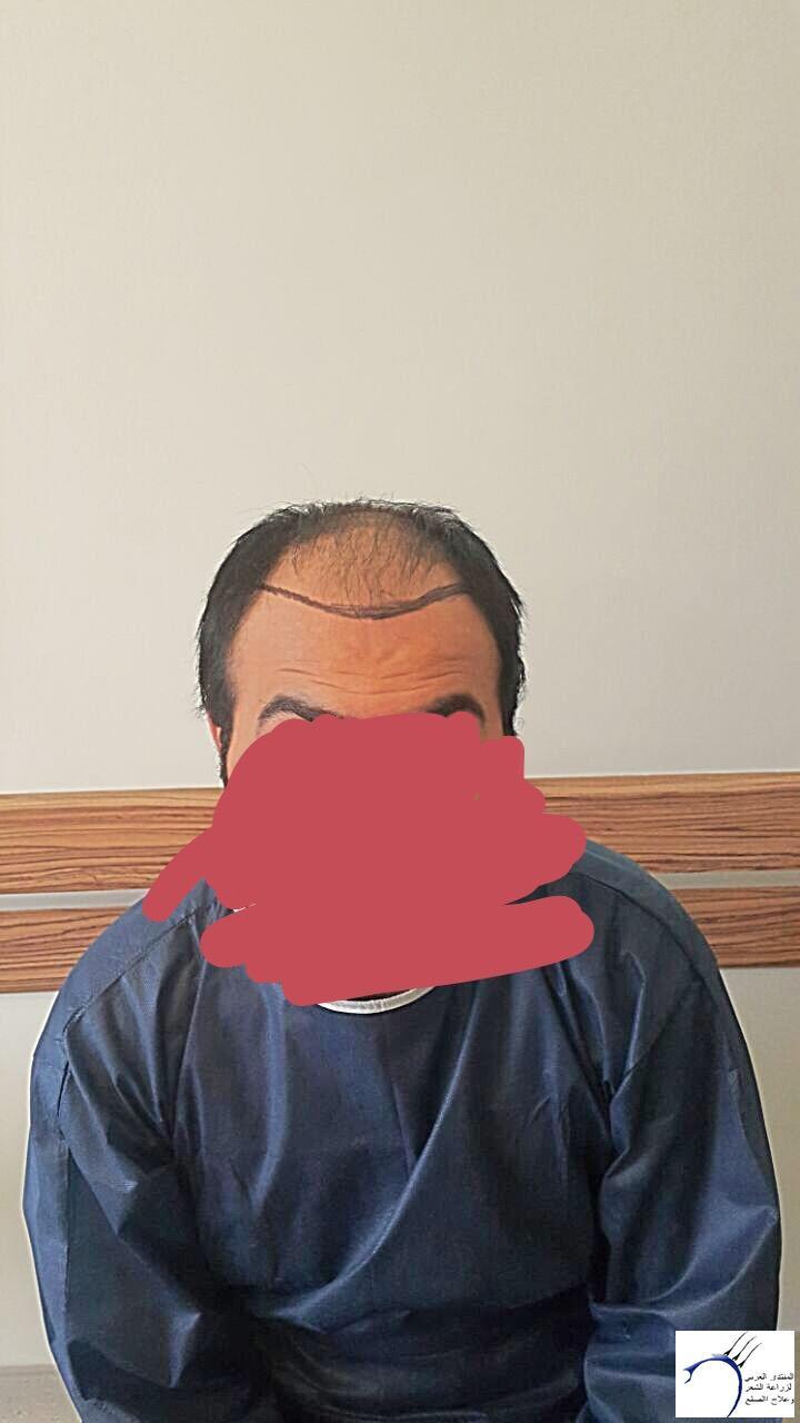 تجربتي رويال تحديث الشهر الرابع www.hairarab.com3048